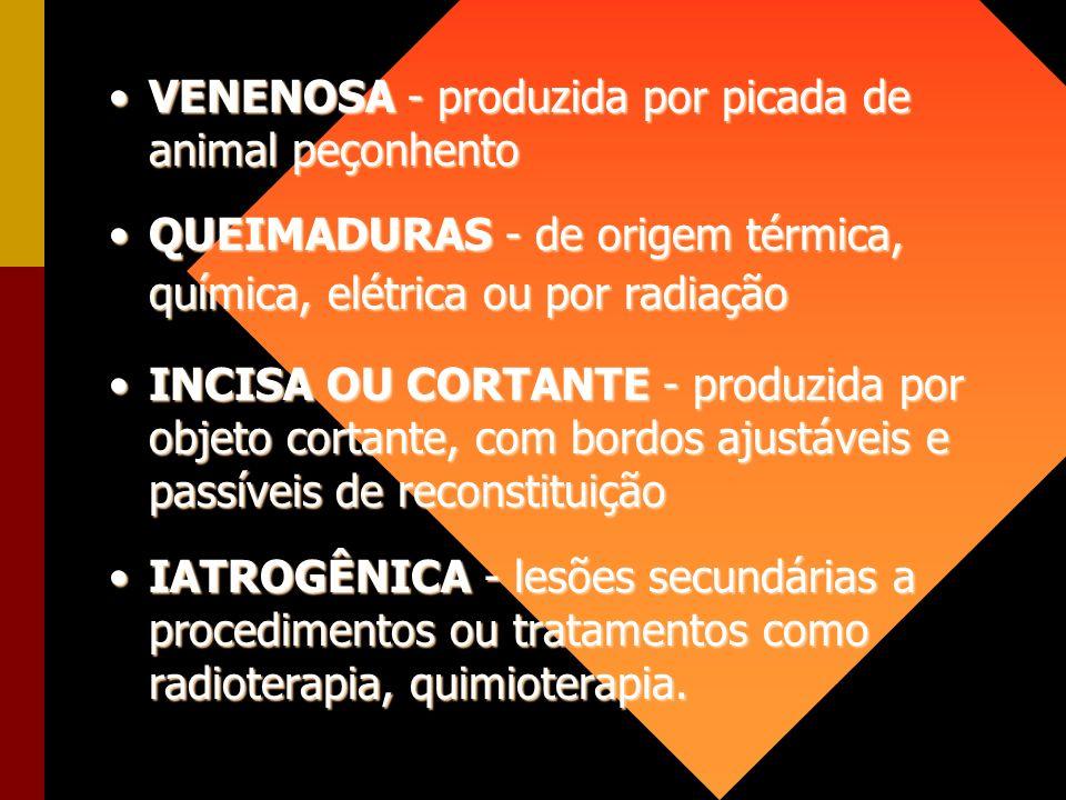 VENENOSA - produzida por picada de animal peçonhento