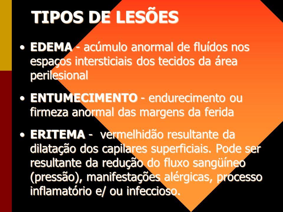 TIPOS DE LESÕES EDEMA - acúmulo anormal de fluídos nos espaços intersticiais dos tecidos da área perilesional.
