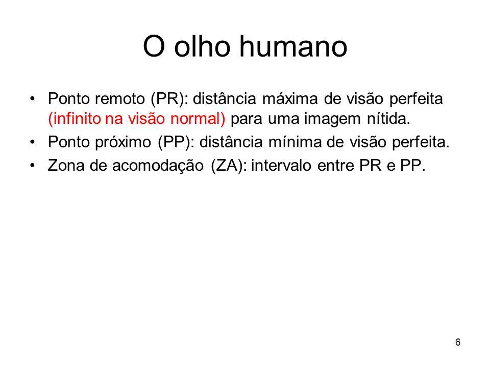 O olho humano Ponto remoto (PR): distância máxima de visão perfeita (infinito na visão normal) para uma imagem nítida.