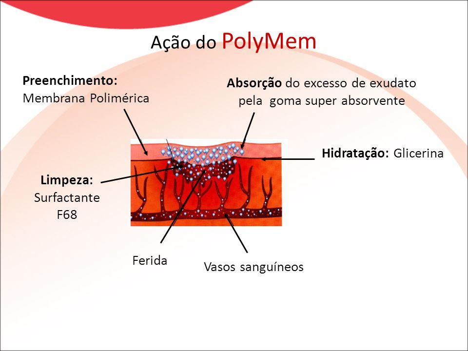 Ação do PolyMem Preenchimento: Membrana Polimérica