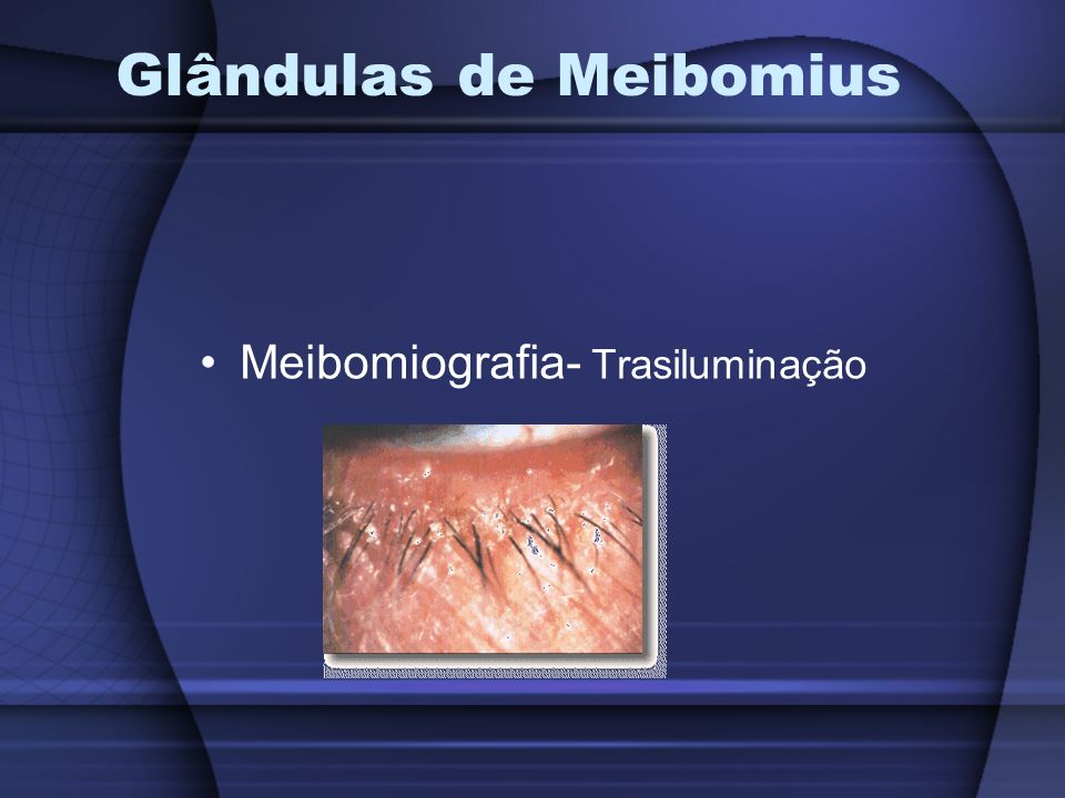 Glândulas de Meibomius