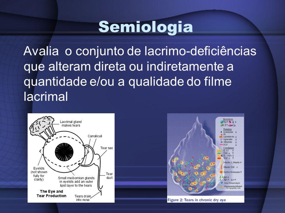 Semiologia Avalia o conjunto de lacrimo-deficiências que alteram direta ou indiretamente a quantidade e/ou a qualidade do filme lacrimal.