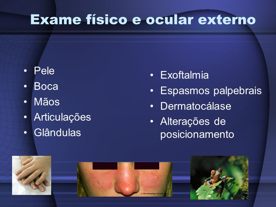 Exame físico e ocular externo
