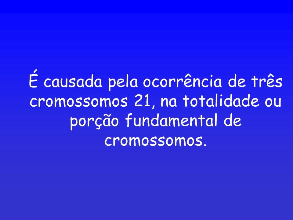 É causada pela ocorrência de três cromossomos 21, na totalidade ou porção fundamental de cromossomos.