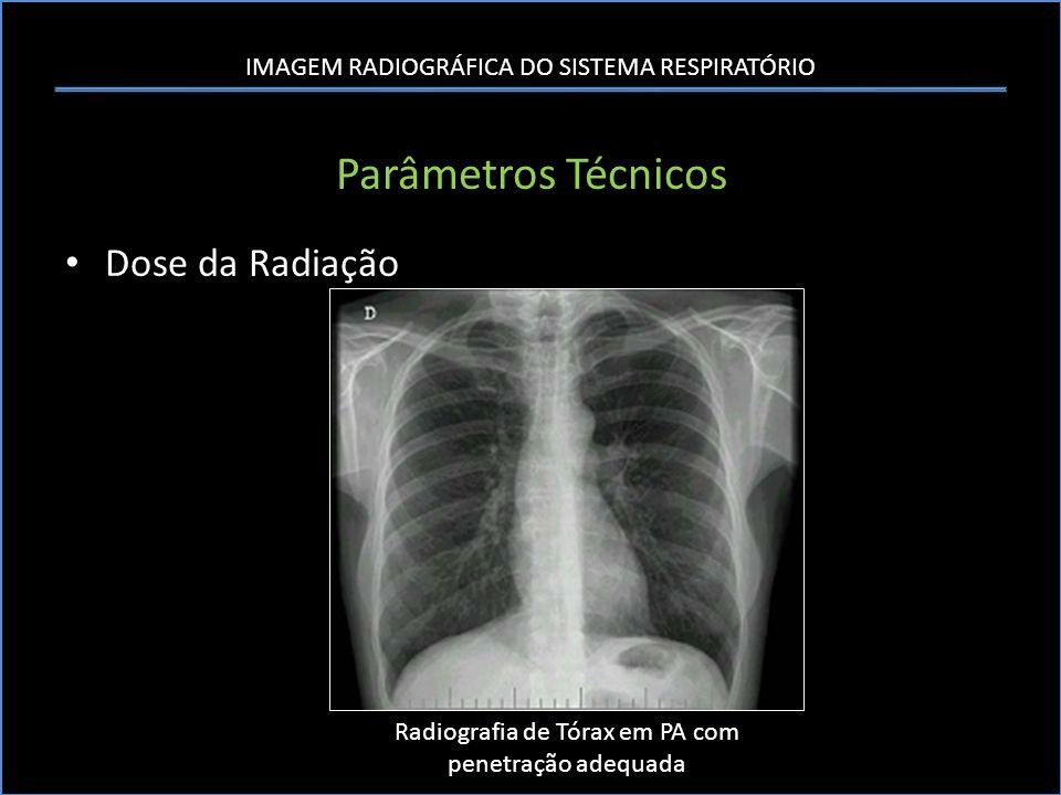 Radiografia de Tórax em PA com penetração adequada