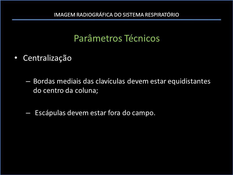 Parâmetros Técnicos Centralização