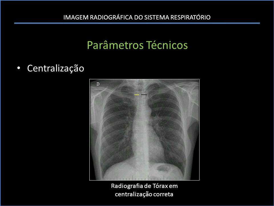 Radiografia de Tórax em centralização correta