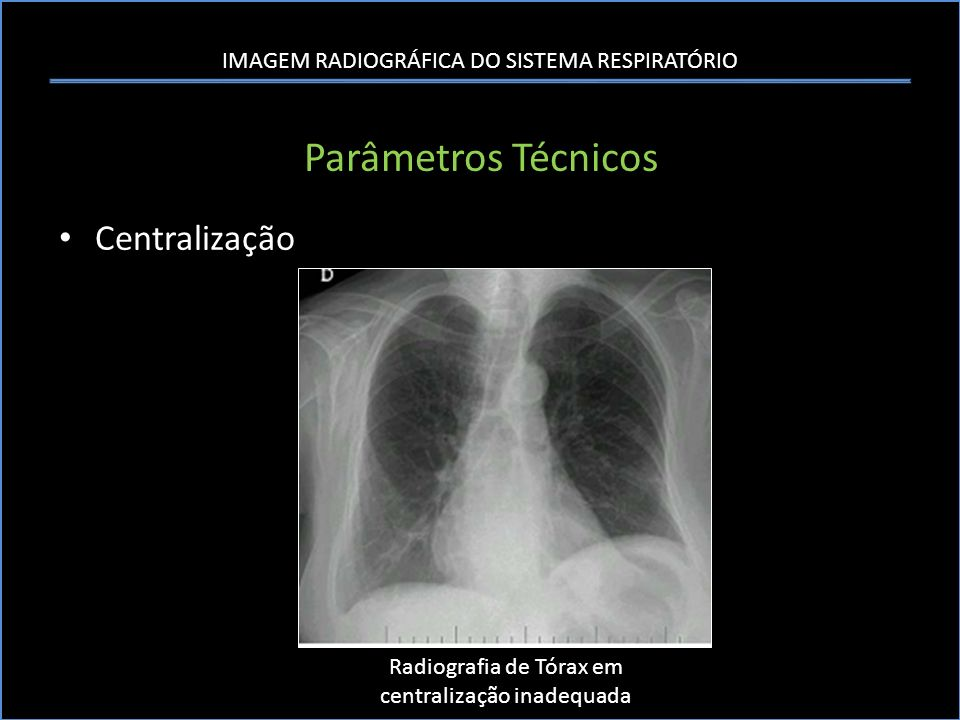 Radiografia de Tórax em centralização inadequada