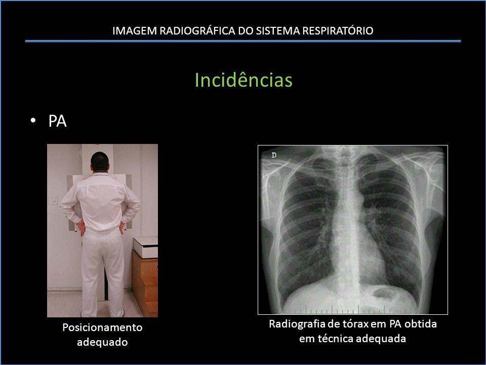 Incidências PA Radiografia de tórax em PA obtida em técnica adequada