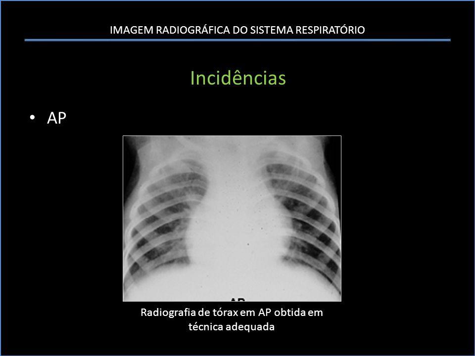 Radiografia de tórax em AP obtida em técnica adequada