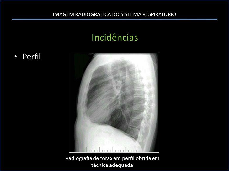 Radiografia de tórax em perfil obtida em técnica adequada