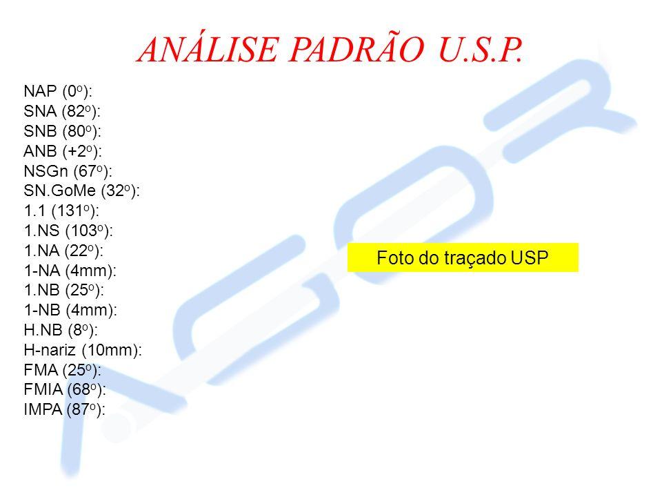 ANÁLISE PADRÃO U.S.P. Foto do traçado USP NAP (0o): SNA (82o):