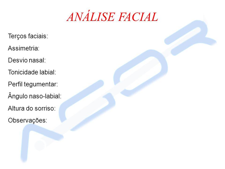 ANÁLISE FACIAL Terços faciais: Assimetria: Desvio nasal: