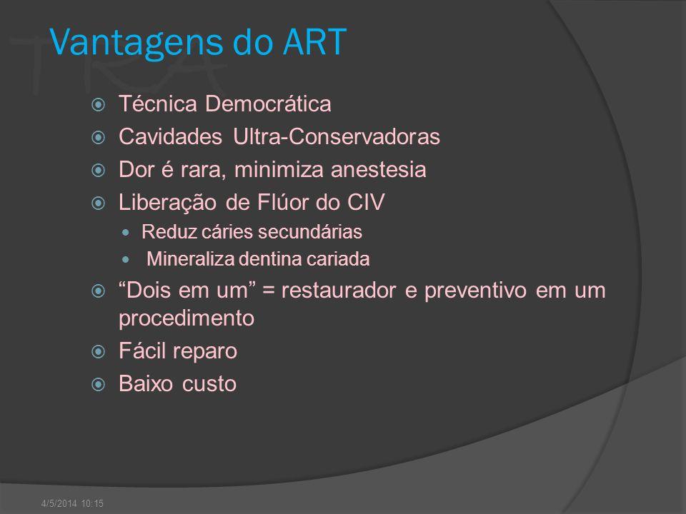 Vantagens do ART Técnica Democrática Cavidades Ultra-Conservadoras