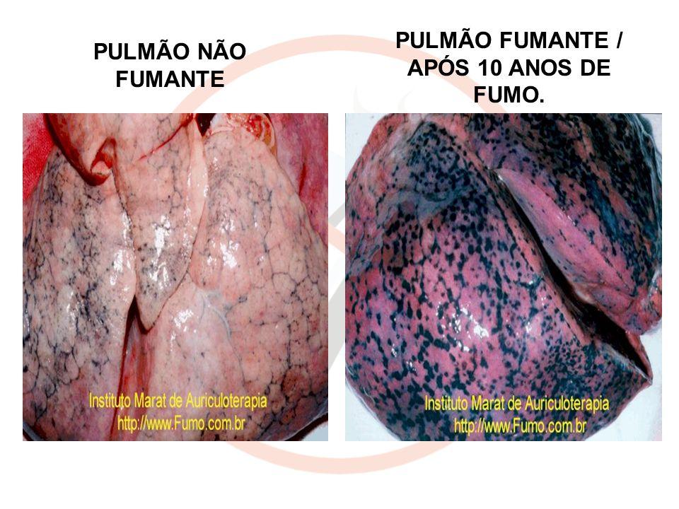 PULMÃO FUMANTE / APÓS 10 ANOS DE FUMO.