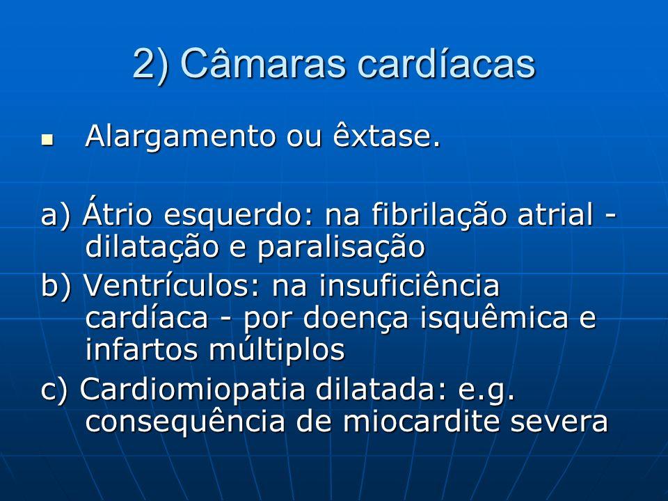 2) Câmaras cardíacas Alargamento ou êxtase.