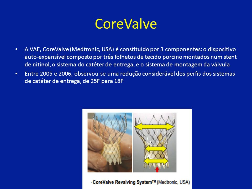 CoreValve