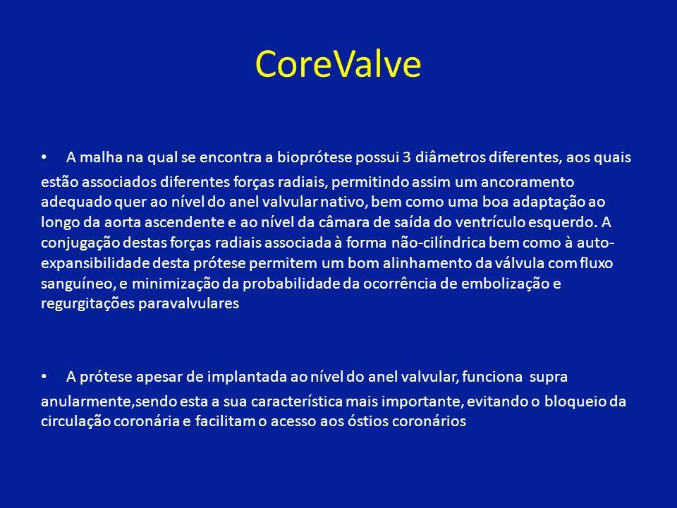 CoreValve A malha na qual se encontra a bioprótese possui 3 diâmetros diferentes, aos quais.