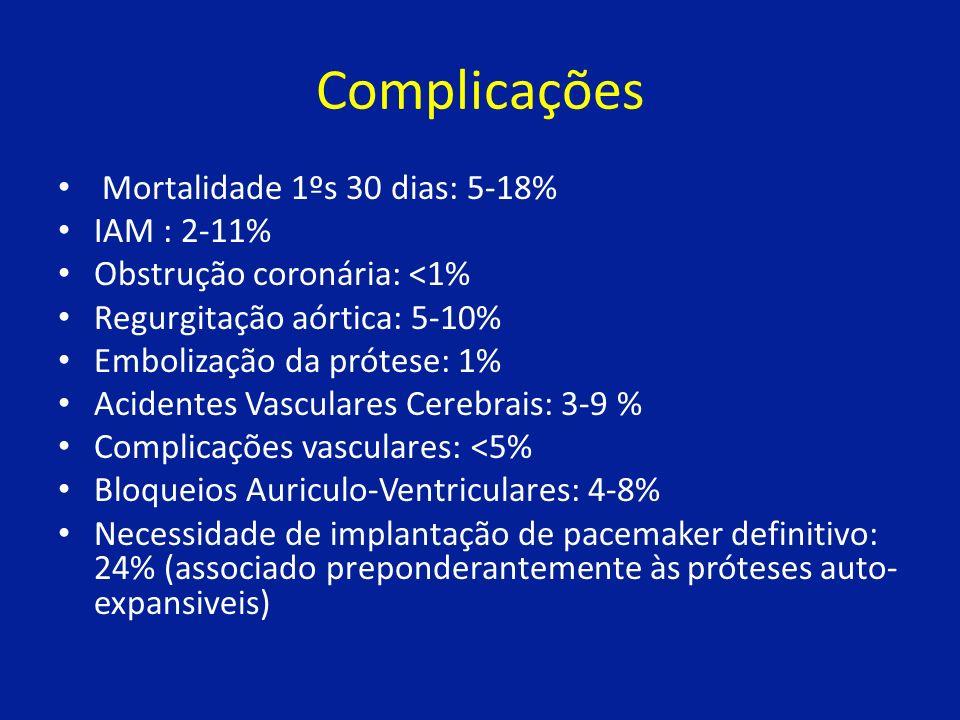 Complicações Mortalidade 1ºs 30 dias: 5-18% IAM : 2-11%