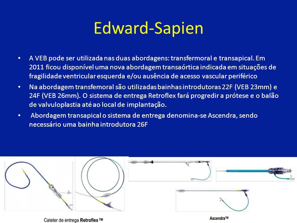 Edward-Sapien