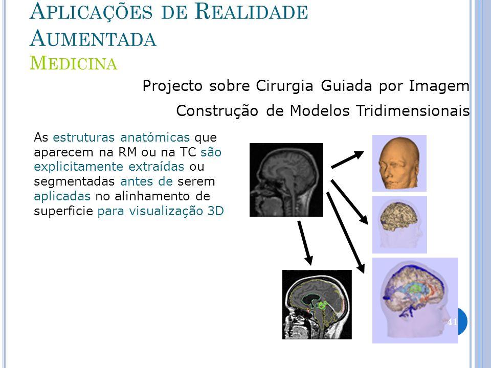 Aplicações de Realidade Aumentada Medicina