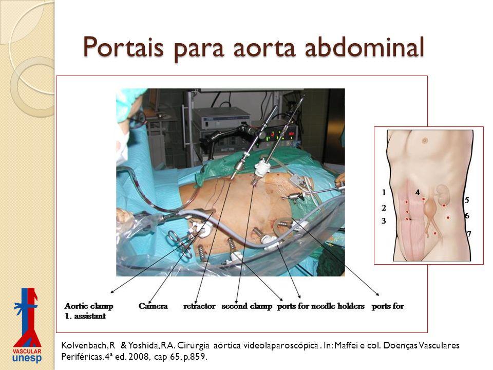 Portais para aorta abdominal