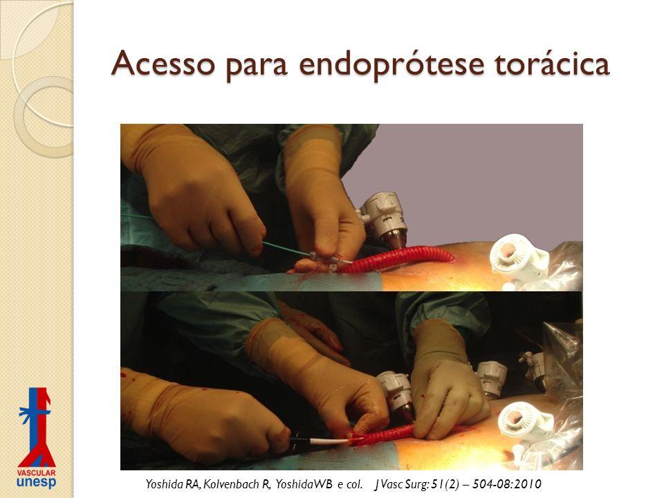 Acesso para endoprótese torácica