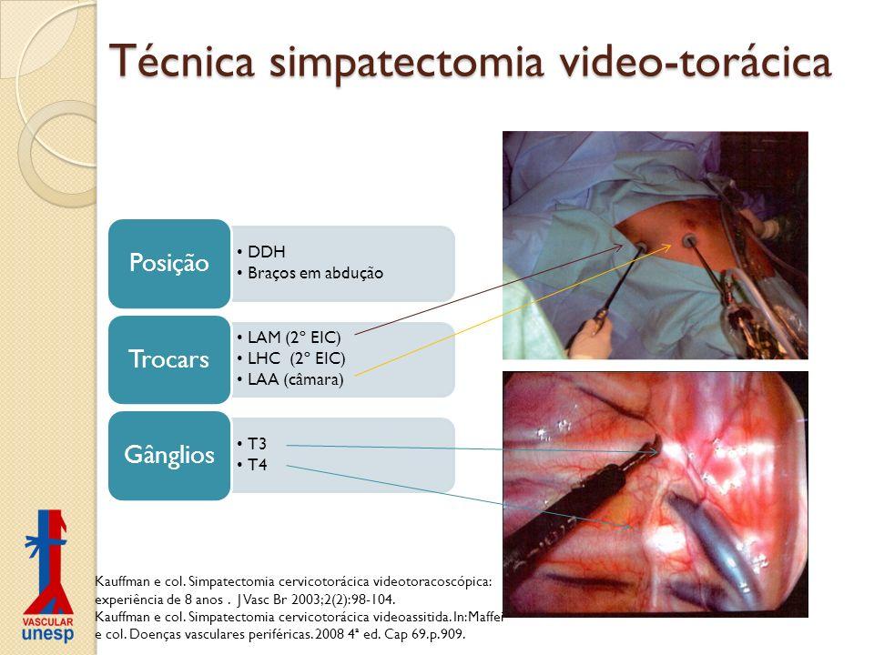 Técnica simpatectomia video-torácica