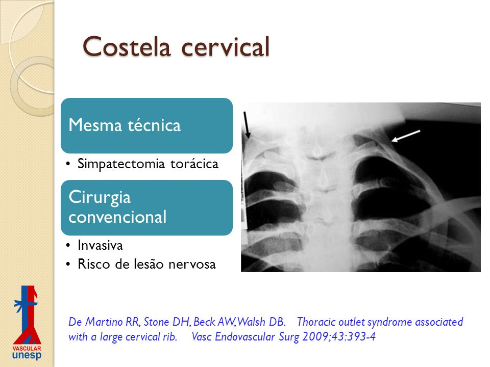 Costela cervical Mesma técnica Cirurgia convencional