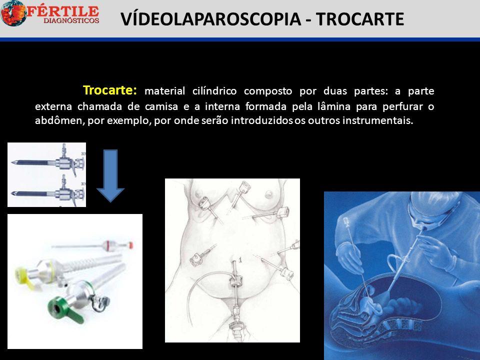VÍDEOLAPAROSCOPIA - TROCARTE