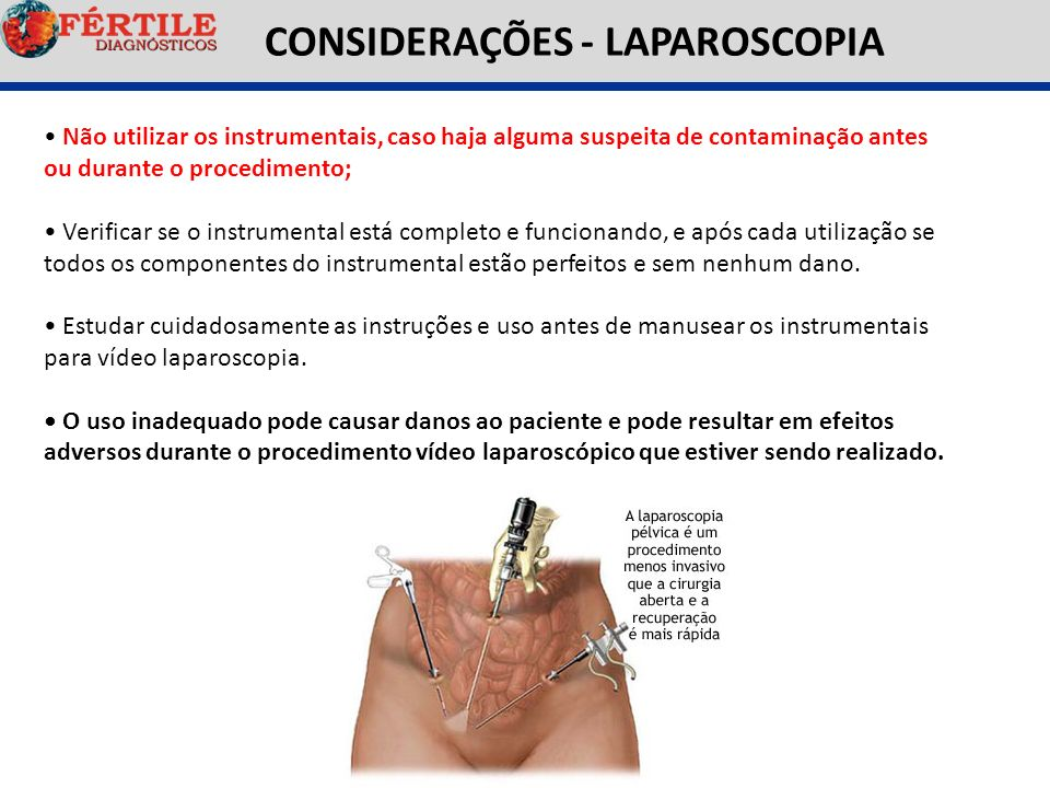CONSIDERAÇÕES - LAPAROSCOPIA