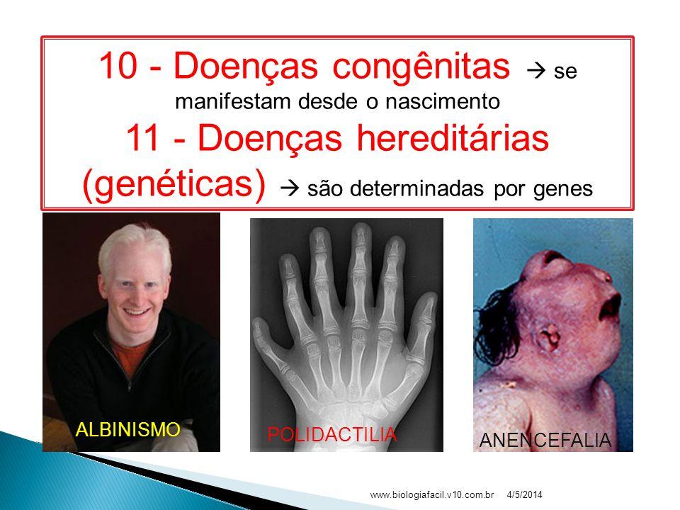 10 - Doenças congênitas  se manifestam desde o nascimento