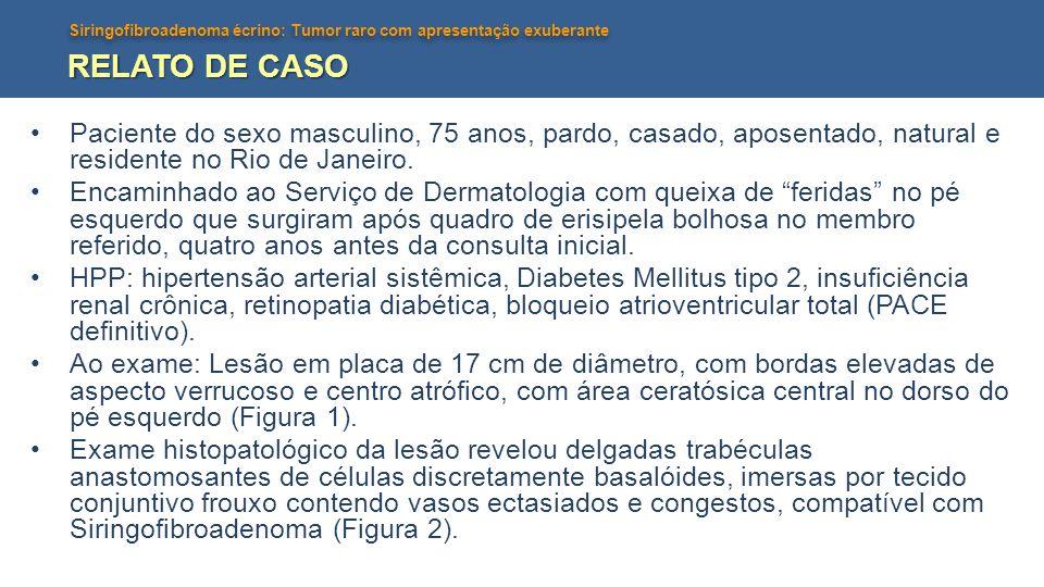 RELATO DE CASO Paciente do sexo masculino, 75 anos, pardo, casado, aposentado, natural e residente no Rio de Janeiro.