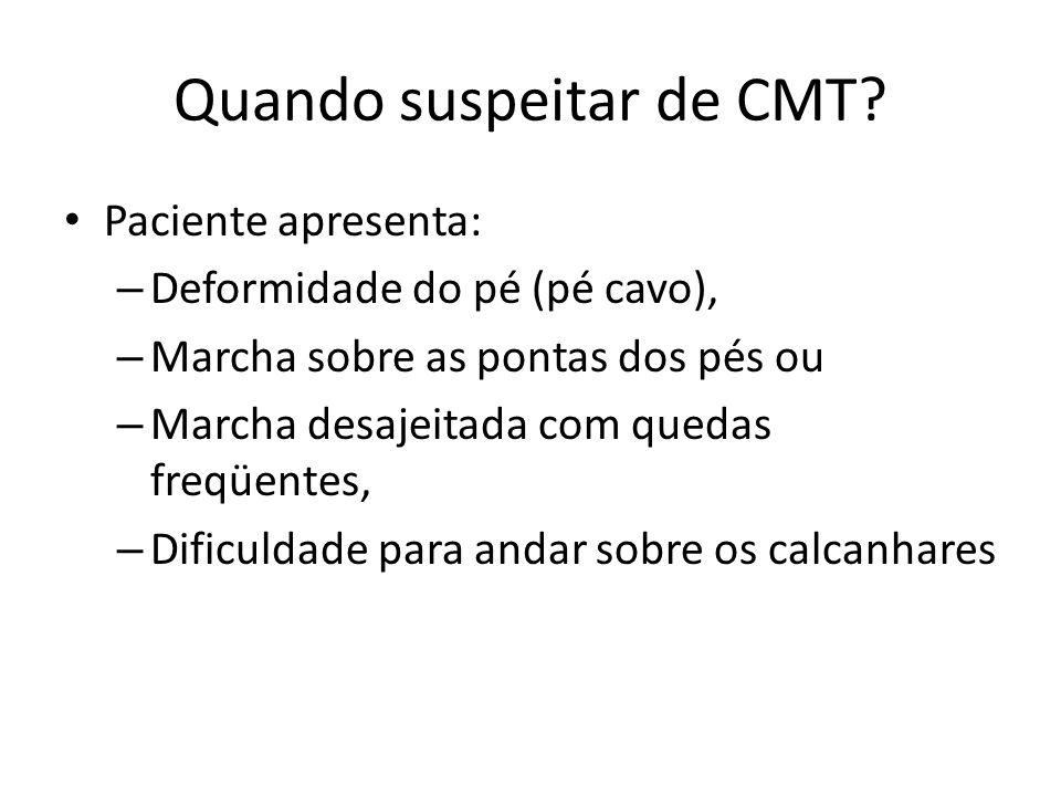Quando suspeitar de CMT