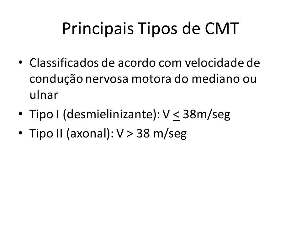 Principais Tipos de CMT