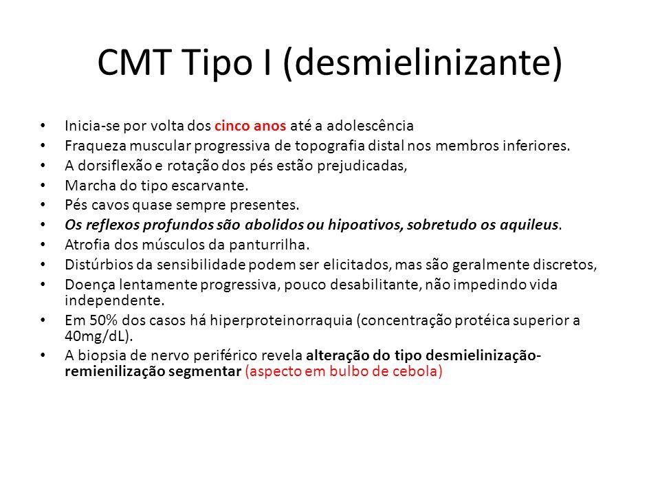 CMT Tipo I (desmielinizante)