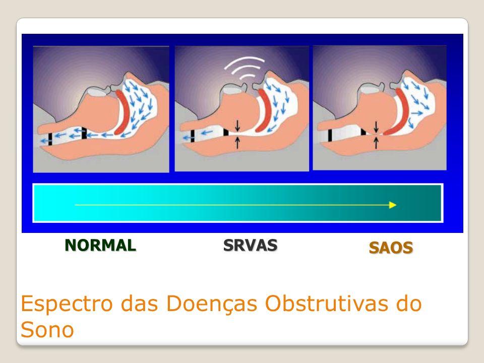 Espectro das Doenças Obstrutivas do Sono