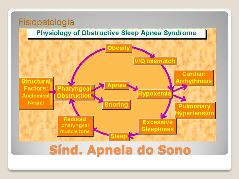 Fisiopatologia Sínd. Apneia do Sono