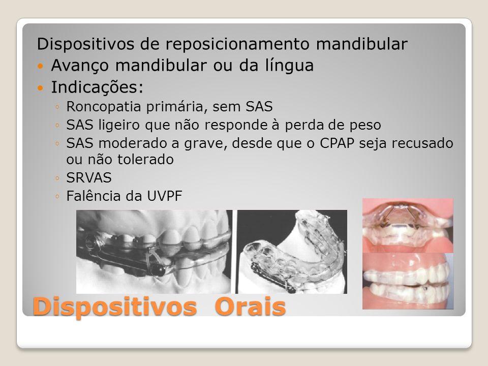 Dispositivos Orais Dispositivos de reposicionamento mandibular