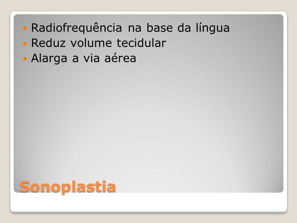 Sonoplastia Radiofrequência na base da língua Reduz volume tecidular