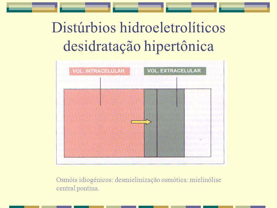 Distúrbios hidroeletrolíticos desidratação hipertônica