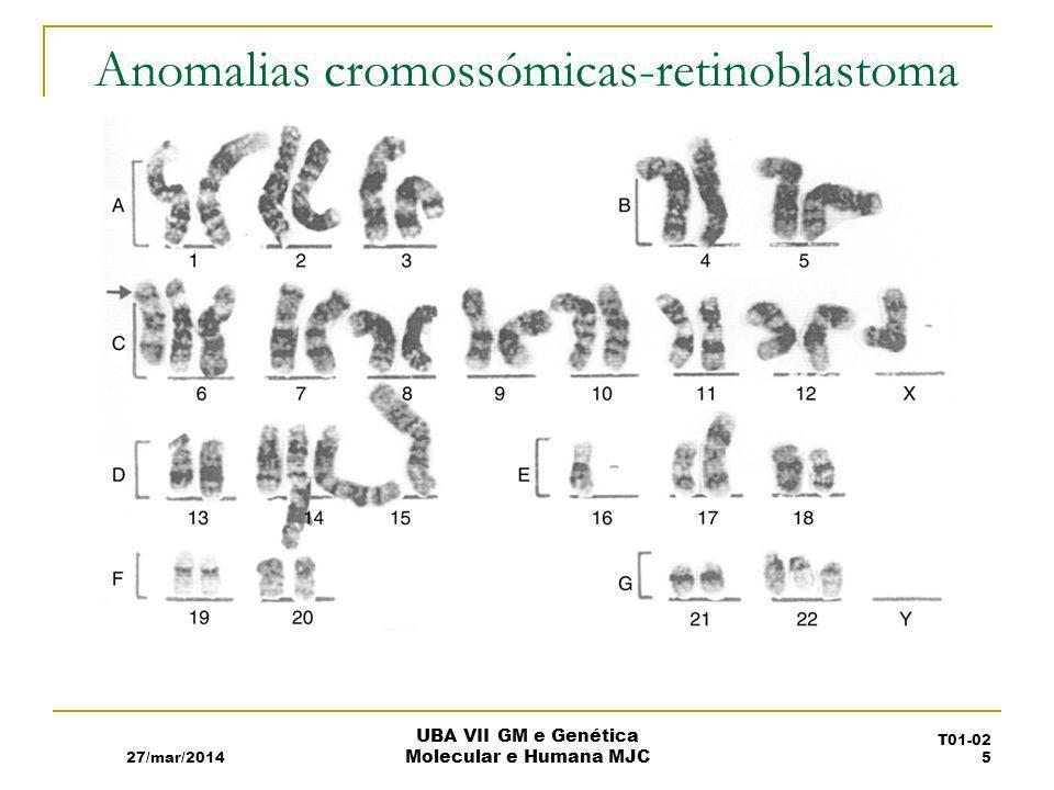 Anomalias cromossómicas-retinoblastoma
