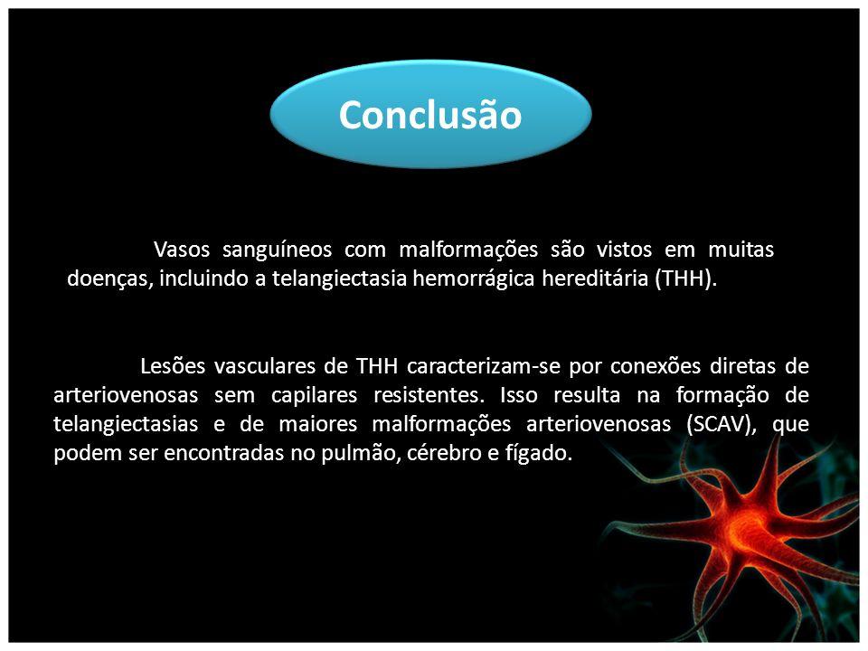 Conclusão Vasos sanguíneos com malformações são vistos em muitas doenças, incluindo a telangiectasia hemorrágica hereditária (THH).