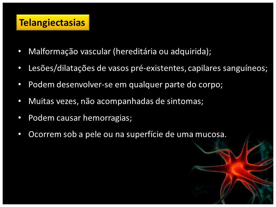 Telangiectasias Malformação vascular (hereditária ou adquirida);