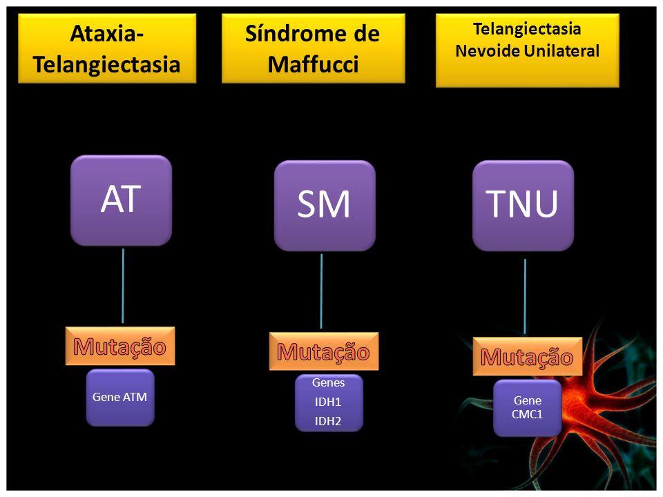 Ataxia-Telangiectasia Telangiectasia Nevoide Unilateral