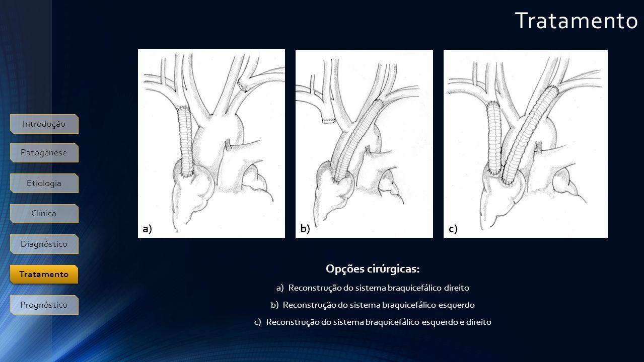 Tratamento a) b) c) Opções cirúrgicas: Introdução Patogénese Etiologia