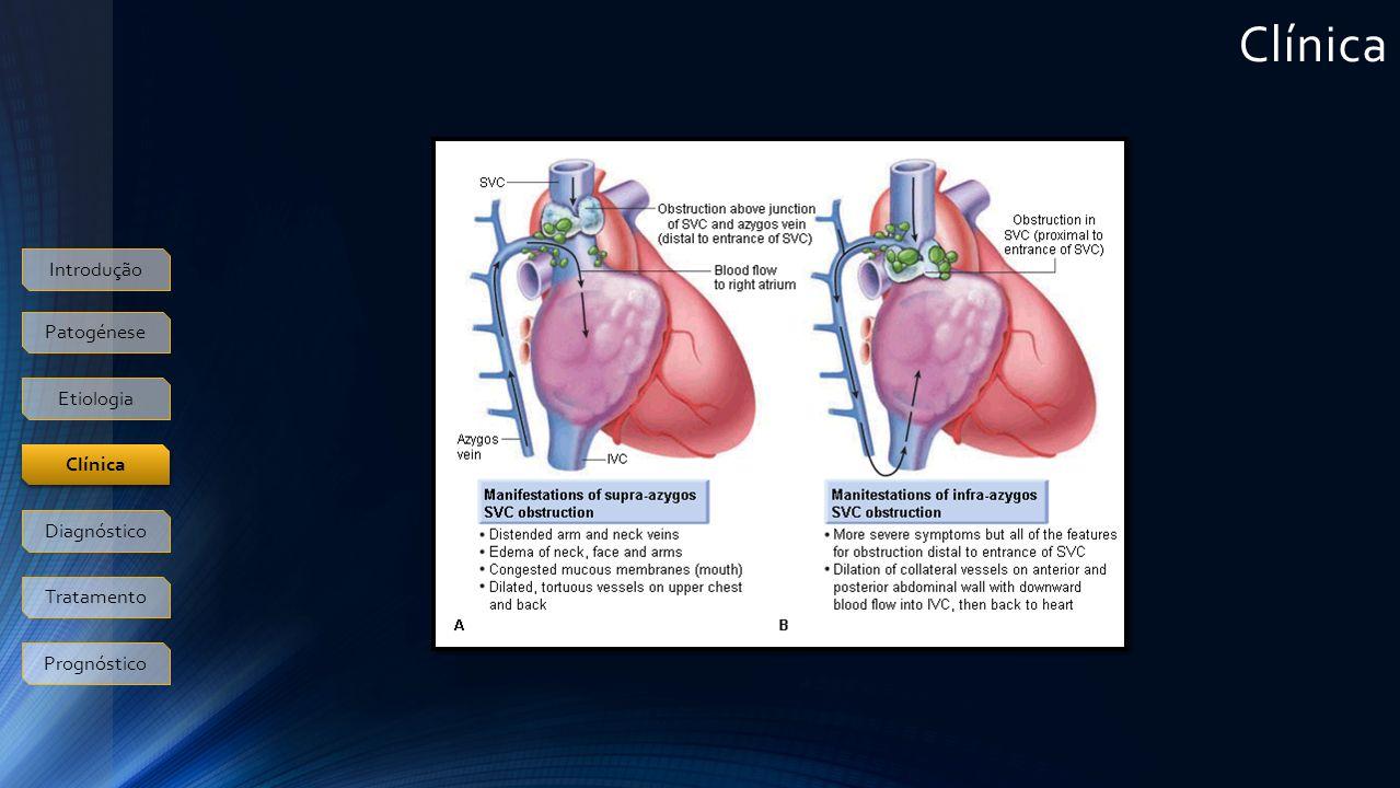 Clínica Introdução Patogénese Etiologia Clínica Diagnóstico Tratamento