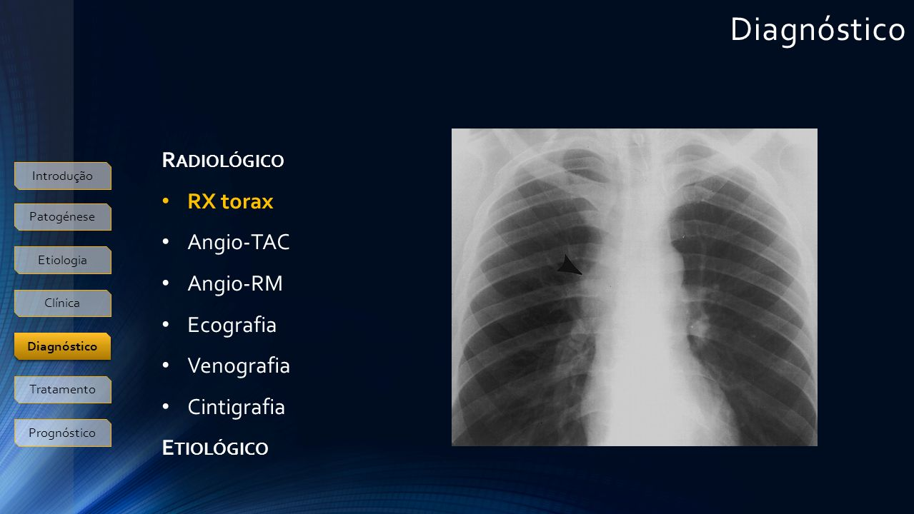 Diagnóstico Radiológico RX torax Angio-TAC Angio-RM Ecografia