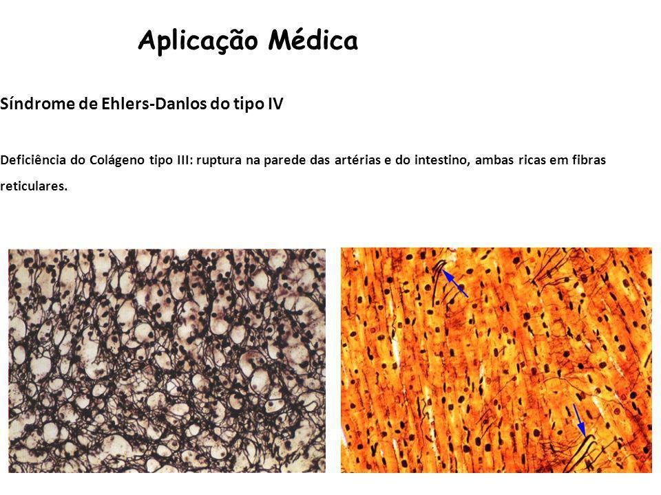 Aplicação Médica Síndrome de Ehlers-Danlos do tipo IV