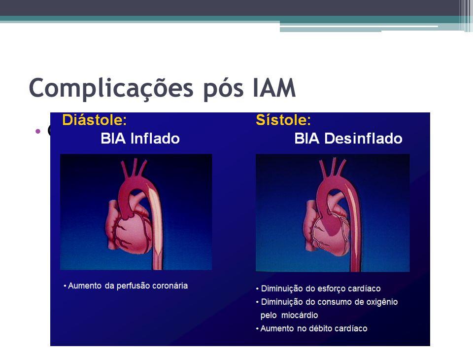 Complicações pós IAM Choque cardiogênico